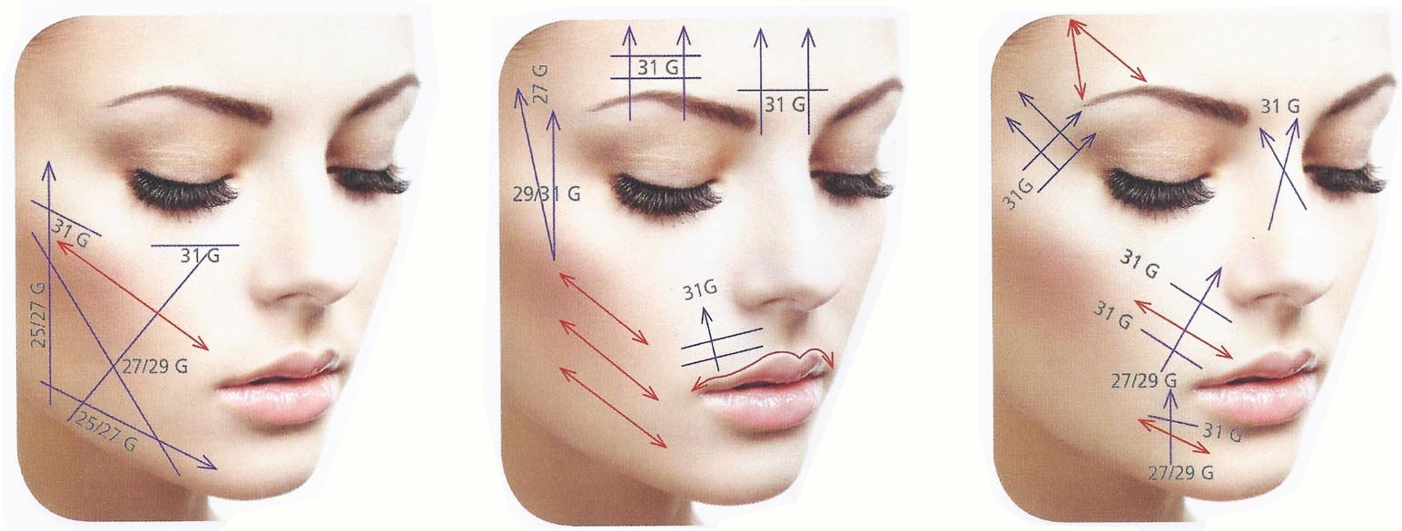 SLIM FACE LIFT 3 IMAGES