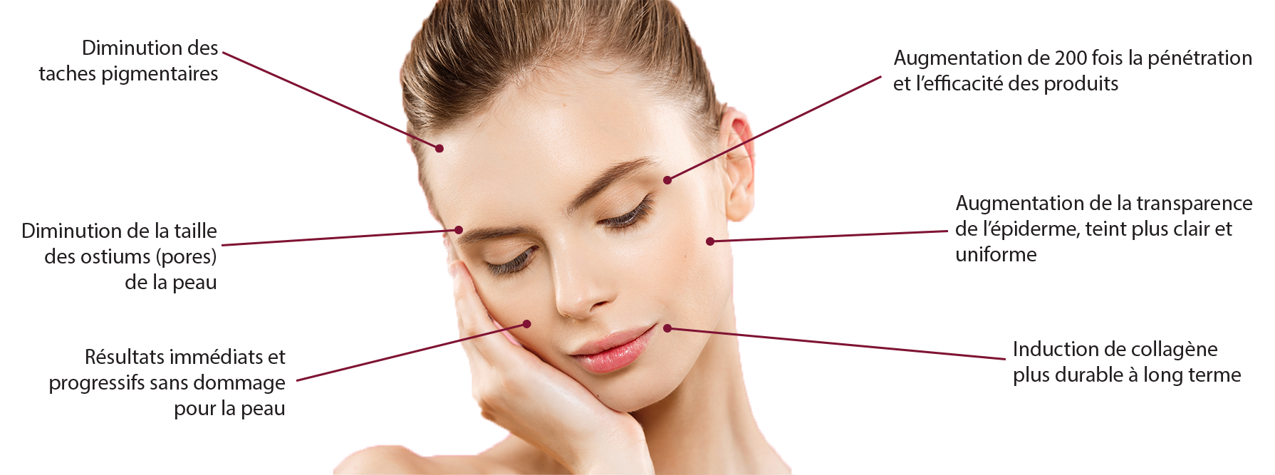 MICRONEEDLING OU STIMULATION COLLAGENIQUE